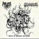 Heirs Of Hideous Secrecies (split avec Skelethal)